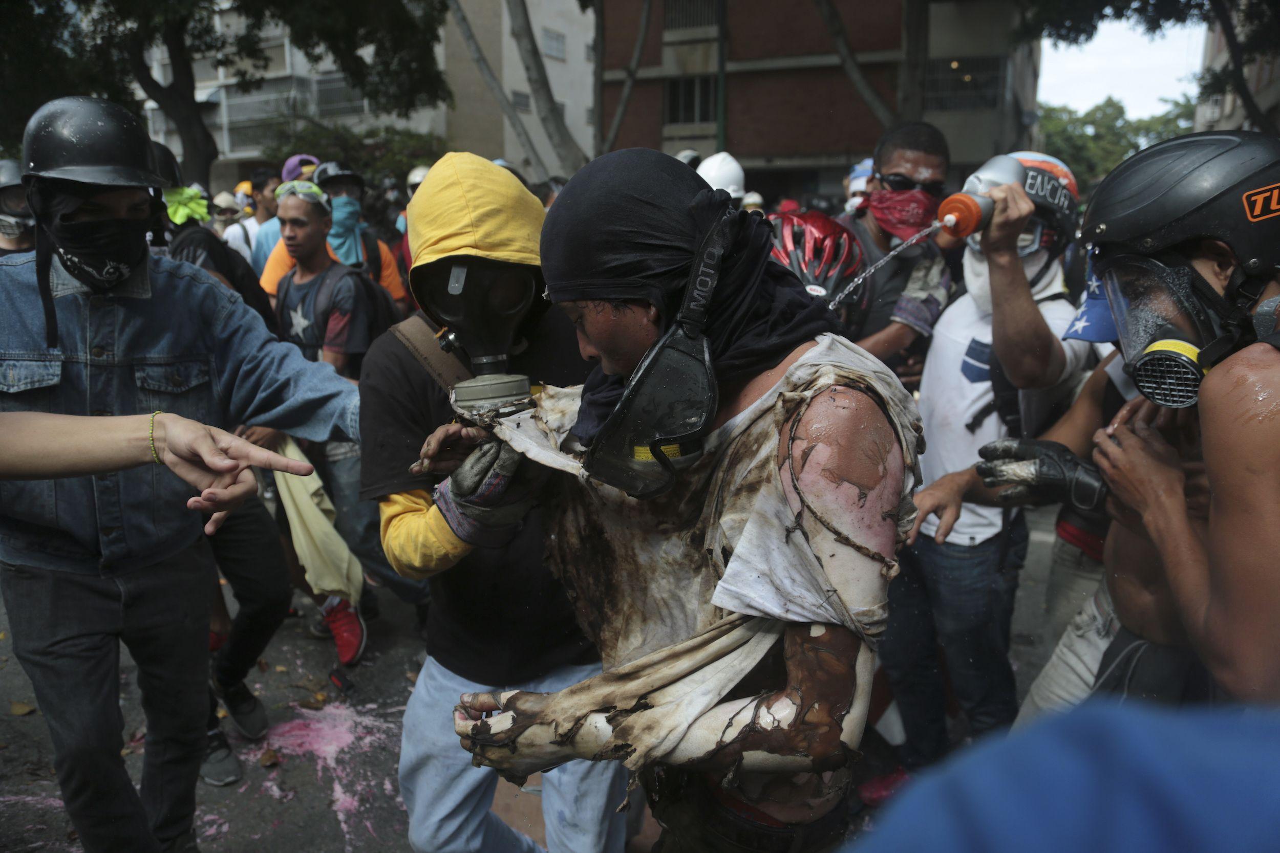 Un hombre es ayudado tras sufrir quemaduras, luego de que manifestantes prendieran en fuego una moto de la Guardia Nacional Bolivariana. (Foto: AP / Fernando Llano)