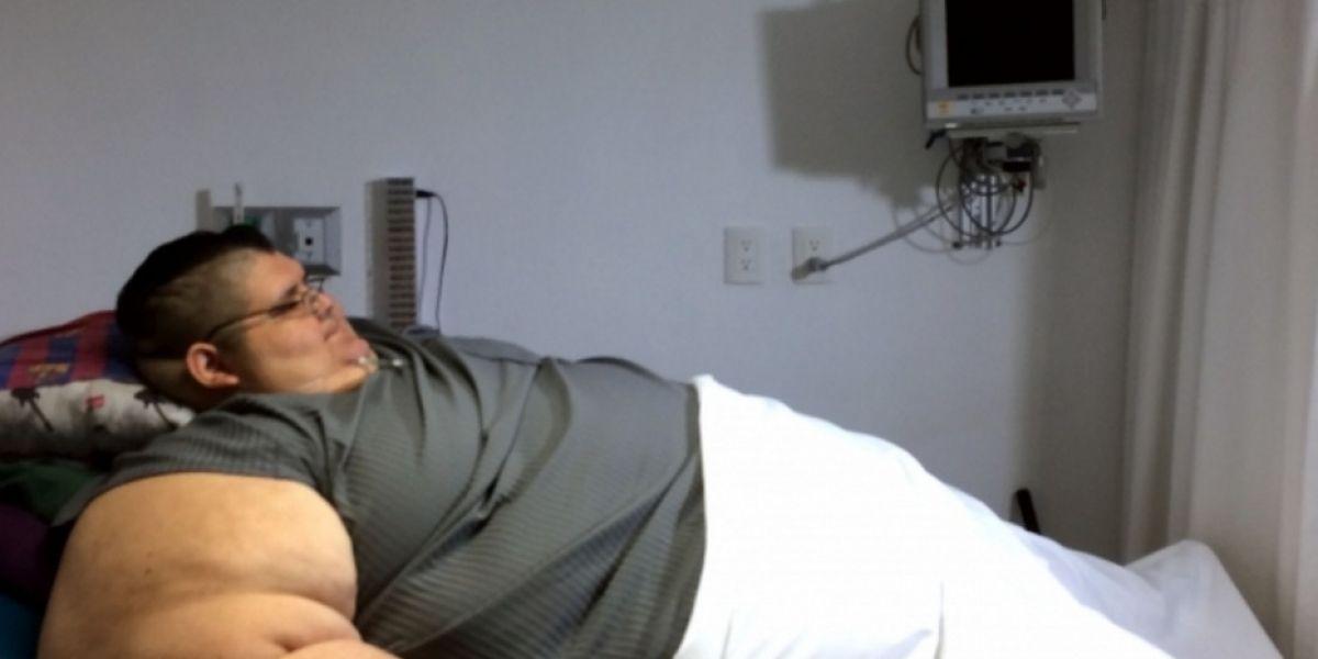 Hombre más obeso del mundo listo para someterse a cirugía biliopancreática