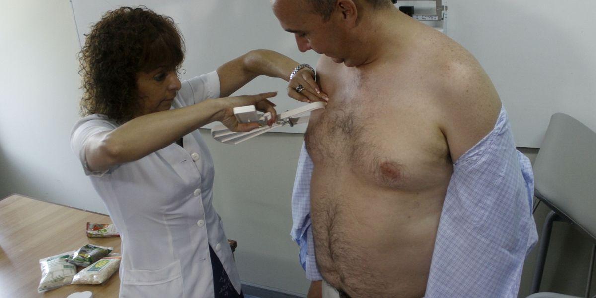 Ginecomastia es la cirugía plástica que más se realizan los hombres chilenos
