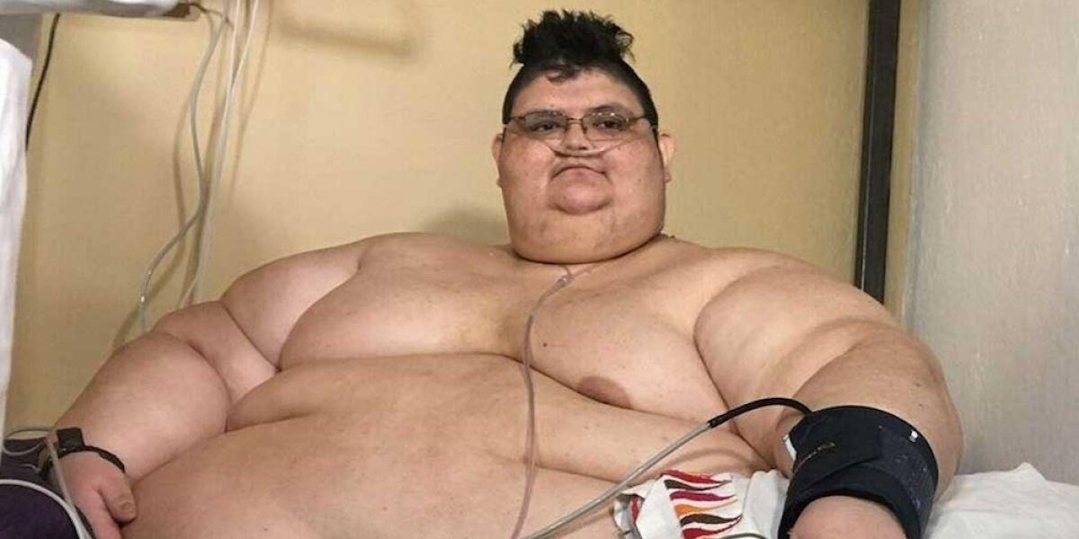 Mexicano más obeso del mundo sale bien de operación reductora