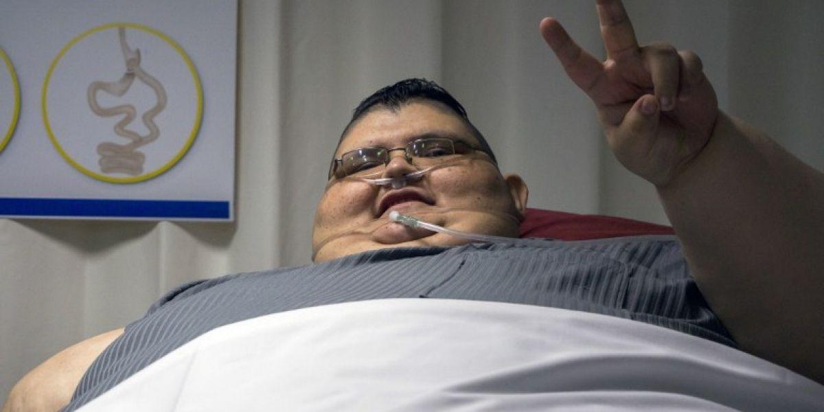 Cirugía practicada al hombre más obeso del mundo fue un éxito