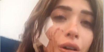Brenda Zambrano fue agredida en un antro