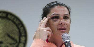 Liberan a agresor de Ana Gabriela Guevara