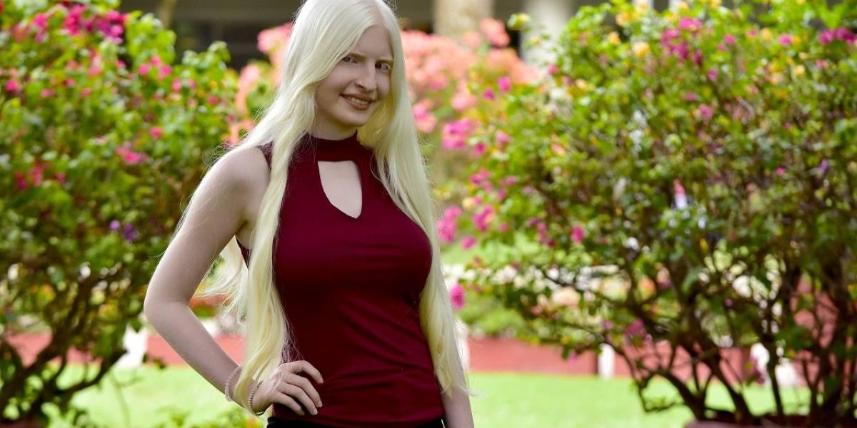 """""""Soy albina, soy cantante y mi discapacidad visual no es obstáculo para proyectar mi voz a todo el mundo"""": María Laura Ávila"""