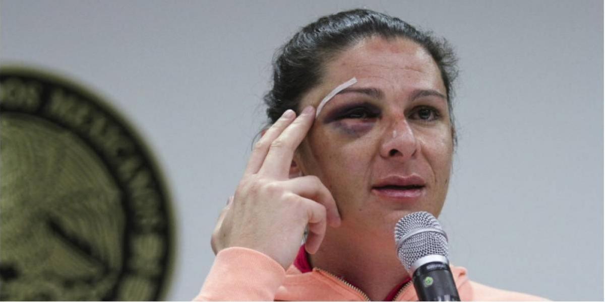 Agresor de Ana Guevara queda en libertad tras brutal golpiza