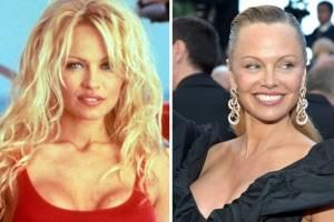 Pamela Anderson luce irreconocible, su rostro sufrió un radical cambio