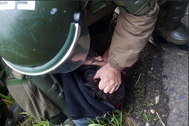 Indh interpone recurso de amparo en favor de joven herido con perdigones en La Araucanía