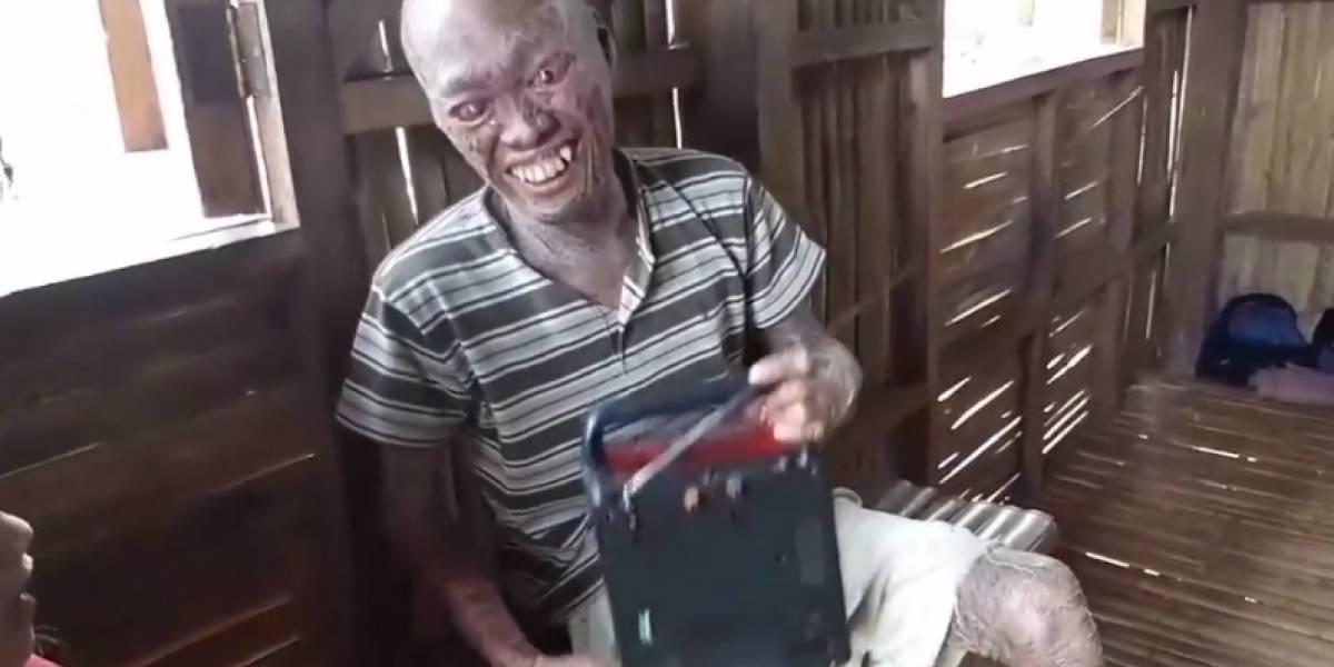 Video: este hombre es considerado 'el demonio' por una enfermedad que tiene en la piel