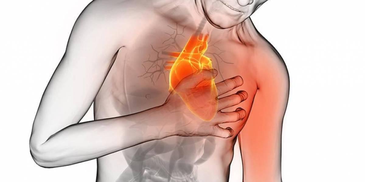 Aumentan muertes por infarto, piden fortalecer programas preventivos