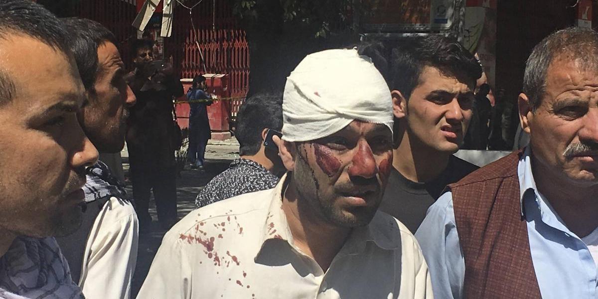 Coche bomba en Kabul deja al menos 90 muertos y más de 300 heridos