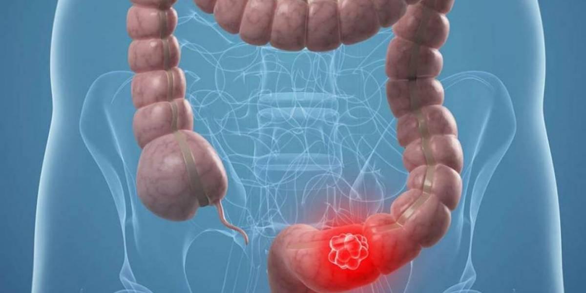 Cancer colon quimio