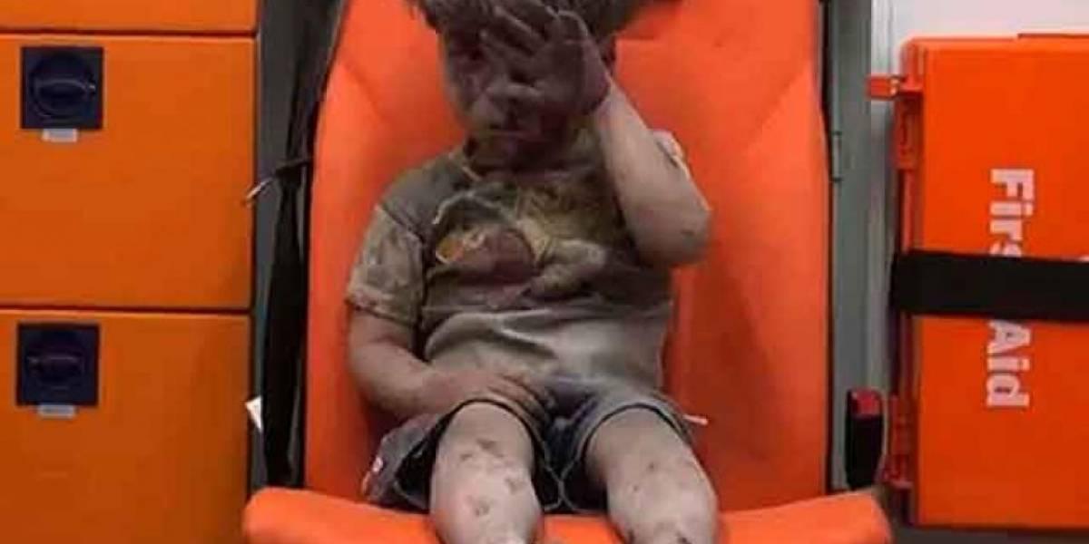 Después de 10 meses, así luce el niño bombardeado en Alepo
