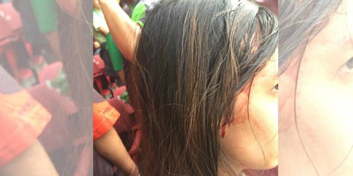Aficionada es descalabrada tras gol de Vela