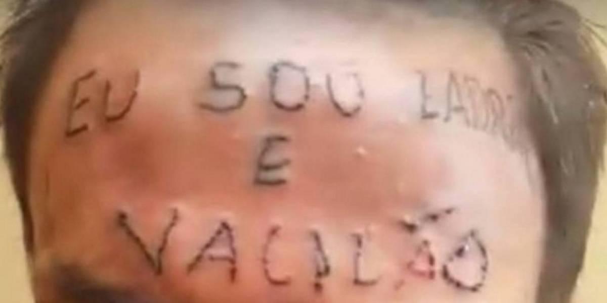 """Le tatuaron la cara con la frase """"Soy un ladrón"""" y organizan campaña para borrar el mensaje"""