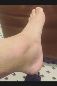 El tobillo de Alexis preocupa / imagen: Instagram Alexis