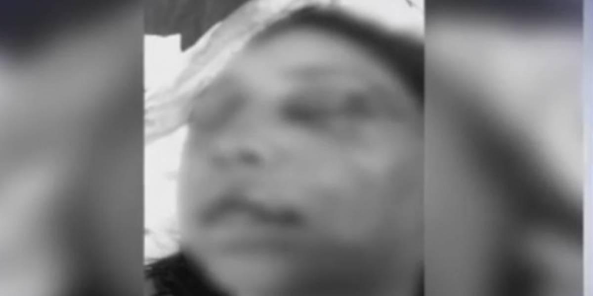 Video: Mujer relató los angustiantes momentos cuando su pareja la golpeó