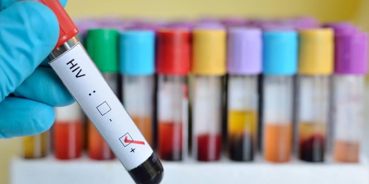 Instan a realizarse prueba del VIH