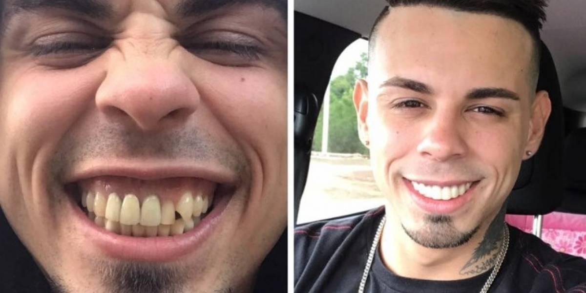 Joshua Pauta estrena nueva dentadura
