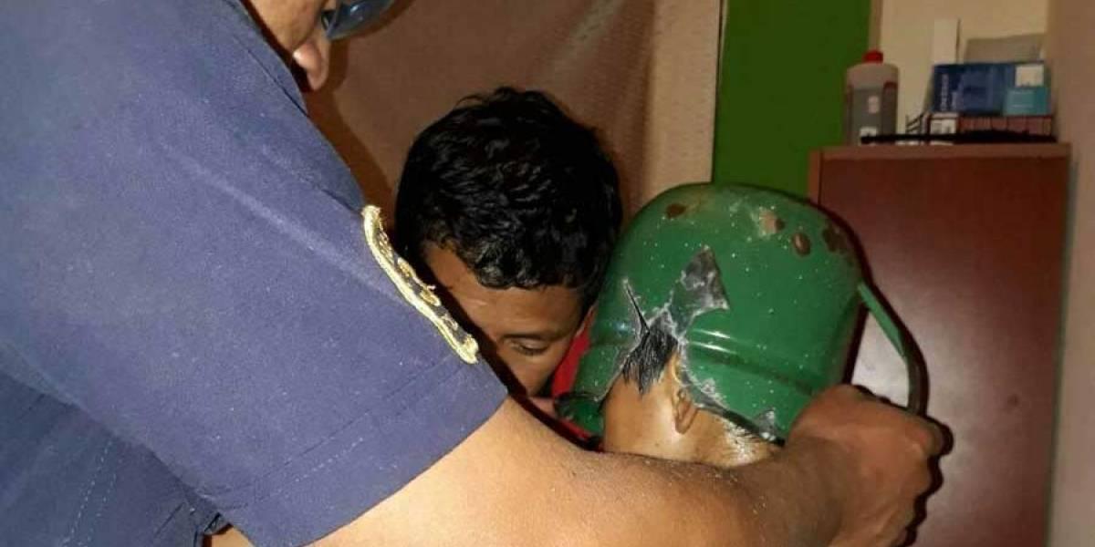 VIDEO. Bomberos realizan delicada maniobra para ayudar a niño con la cabeza atorada en un recipiente