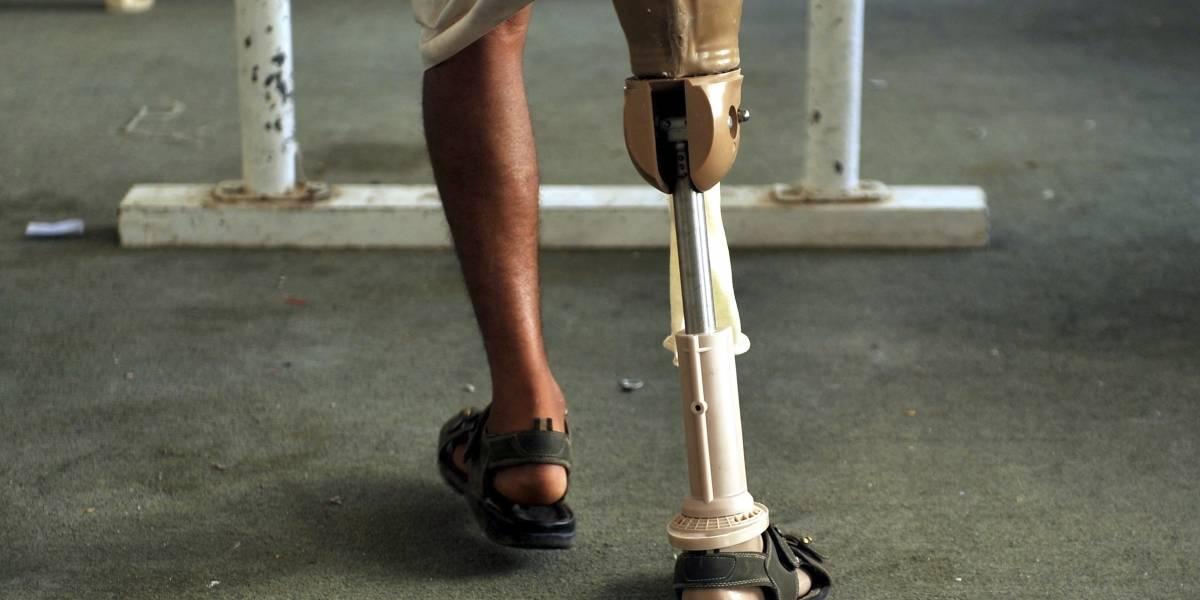 ¡Indignante! Menor de edad pisó una mina antipersona y perdió una de sus piernas