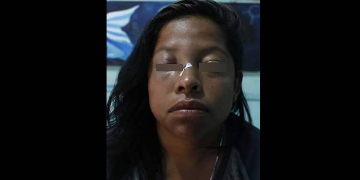 Pareja de lesbianas relata brutal ataque homofóbico en Neza