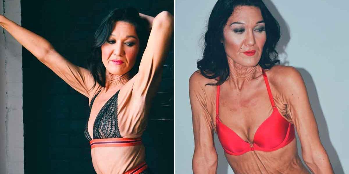 Sara Geurts, la modelo que rompe cánones de belleza: tiene 26 años y su cuerpo está cubierto por arrugas