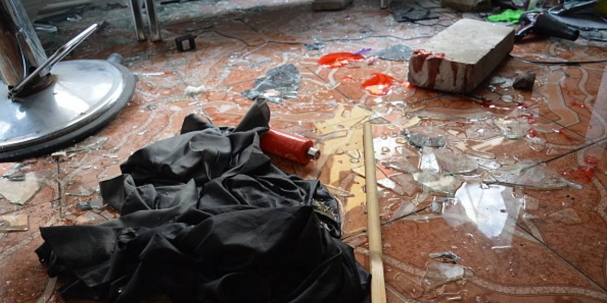 Joven peluquero fue víctima de atentado mientras trabajaba