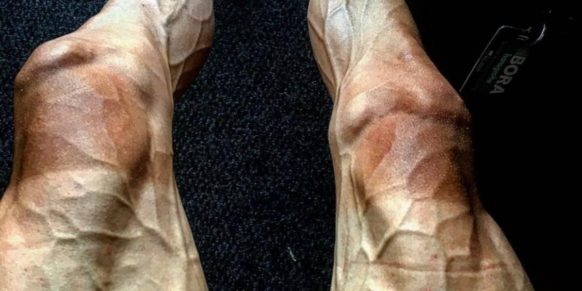 Ciclista mostró cómo le quedaron las piernas tras correr el Tour de Francia