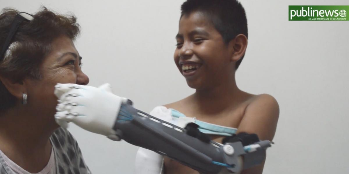 """VIDEO. """"Una mano por ti"""" le devolvió la sonrisa a William, que perdió su mano por volar barrilete"""