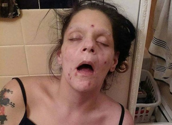 Impactantes imágenes de la recuperación de una mujer adicta a la heroína