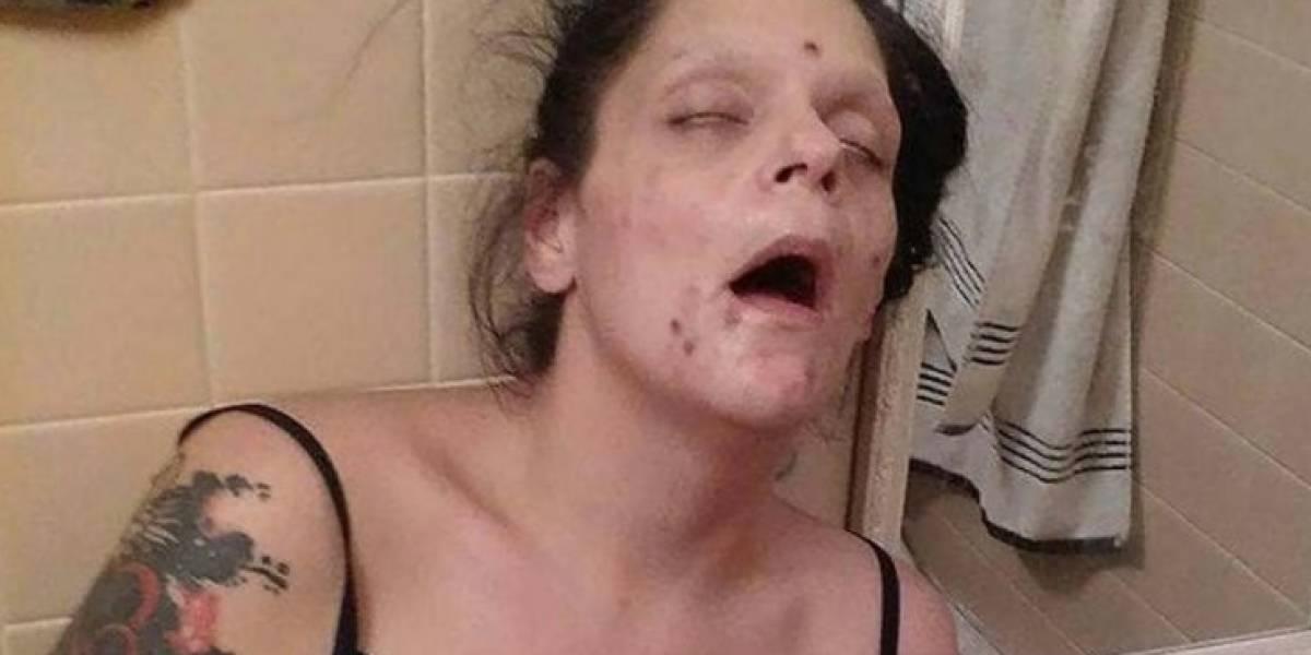 """La impactante transformación de una madre que era una """"zombie"""" por la heroína"""