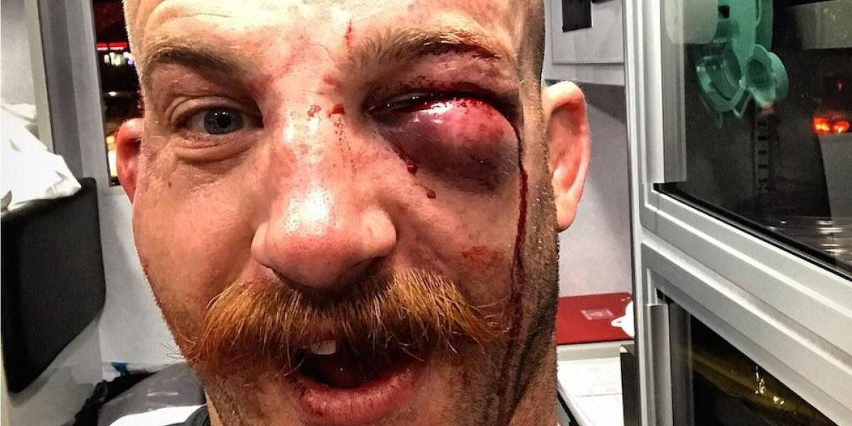 Patrick Cummins presume su ojo golpeado tras ganar en UFC