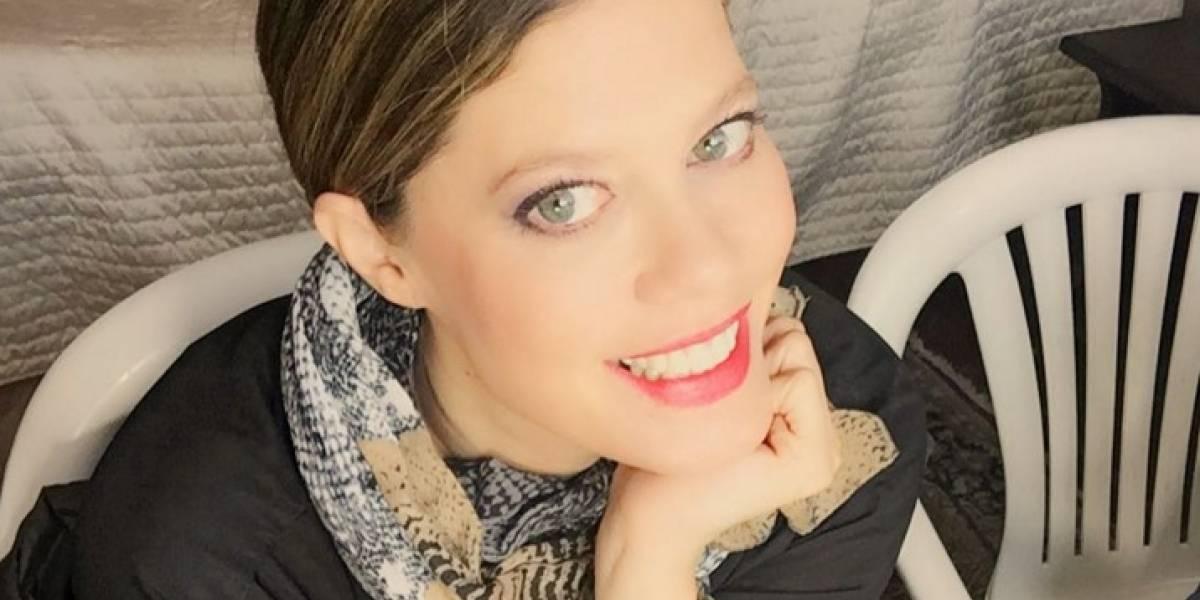 El doloroso tratamiento que usa Lorna Cepeda para lucir más joven