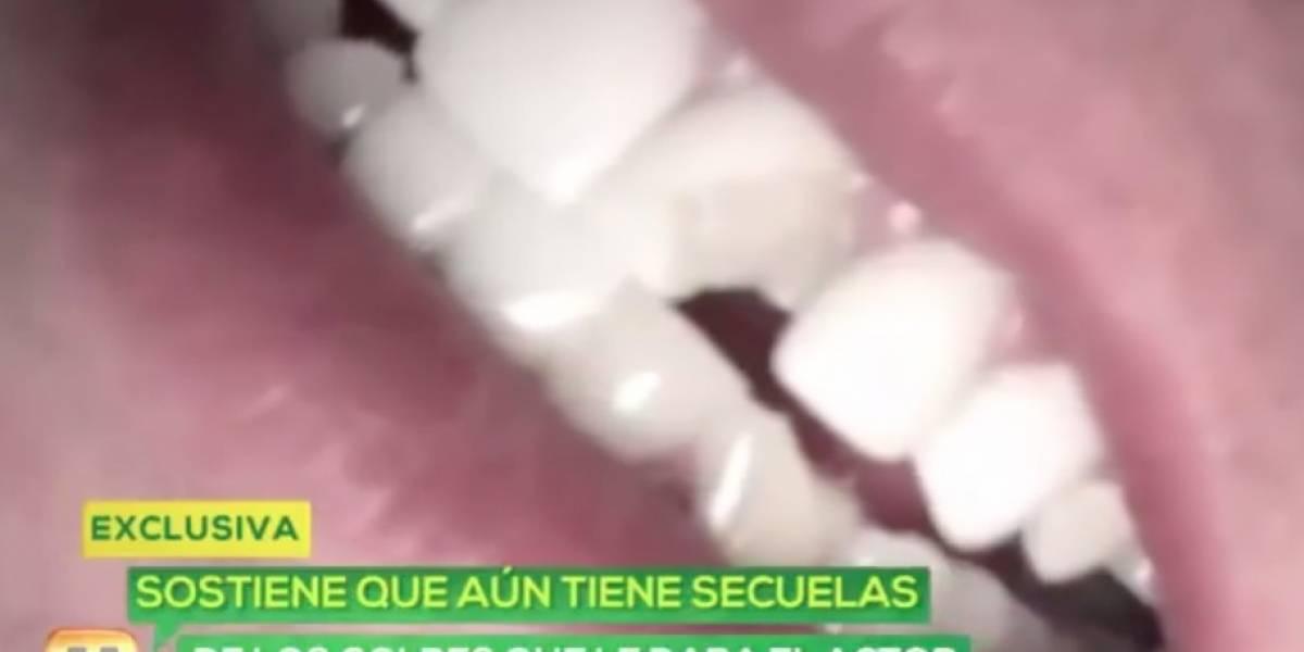 Expareja de actor mexicano revela que fue víctima de palizas