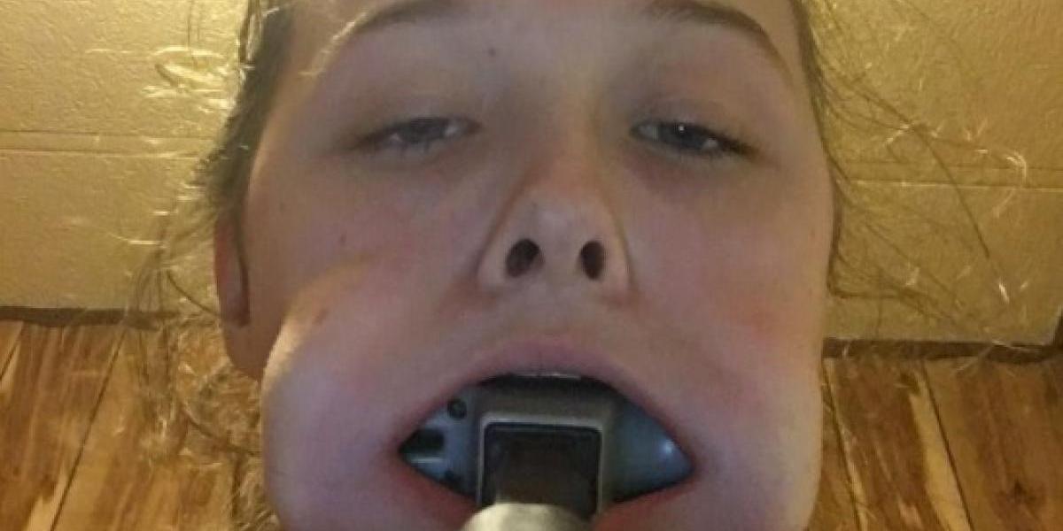 Todo por su banda favorita: adolescente termina con un martillo atascado en su boca y se vuelve viral
