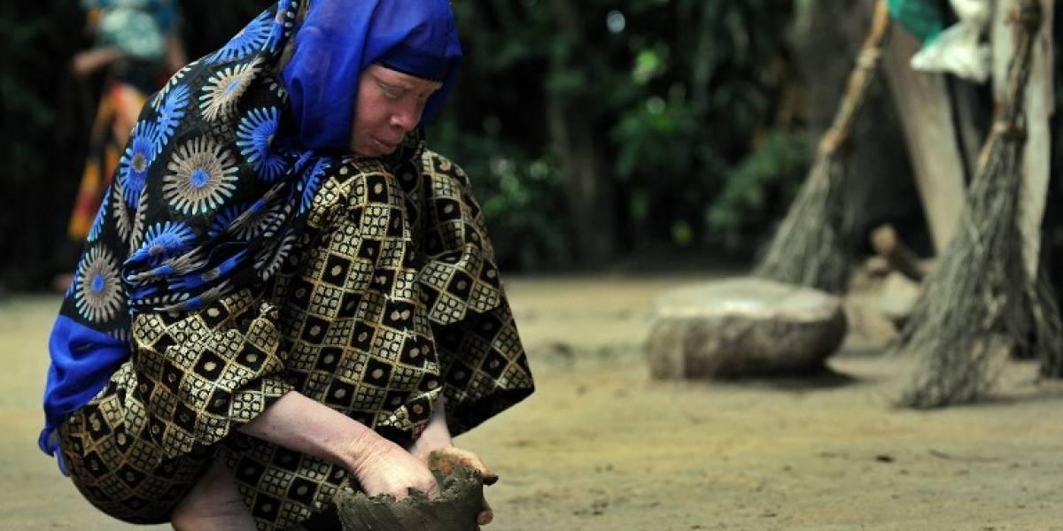 Acusadas de brujería: Ola de asesinatos contra albinas en Tanzania