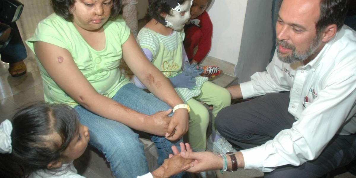 Quemaduras, lesiones más frecuentes en niños durante vacaciones
