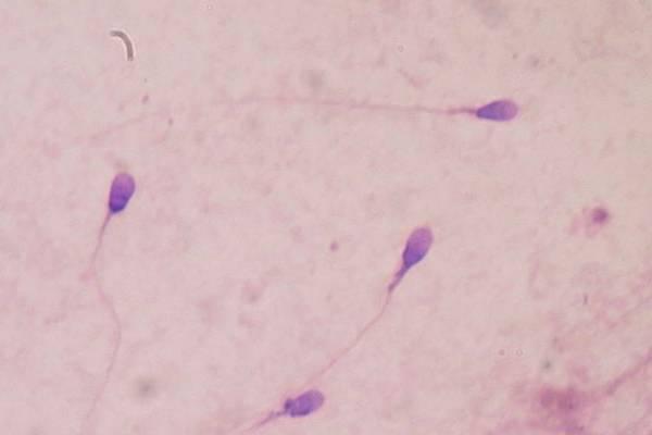 Baja cantidad de espermatozoides pondría en peligro especie de ser humano