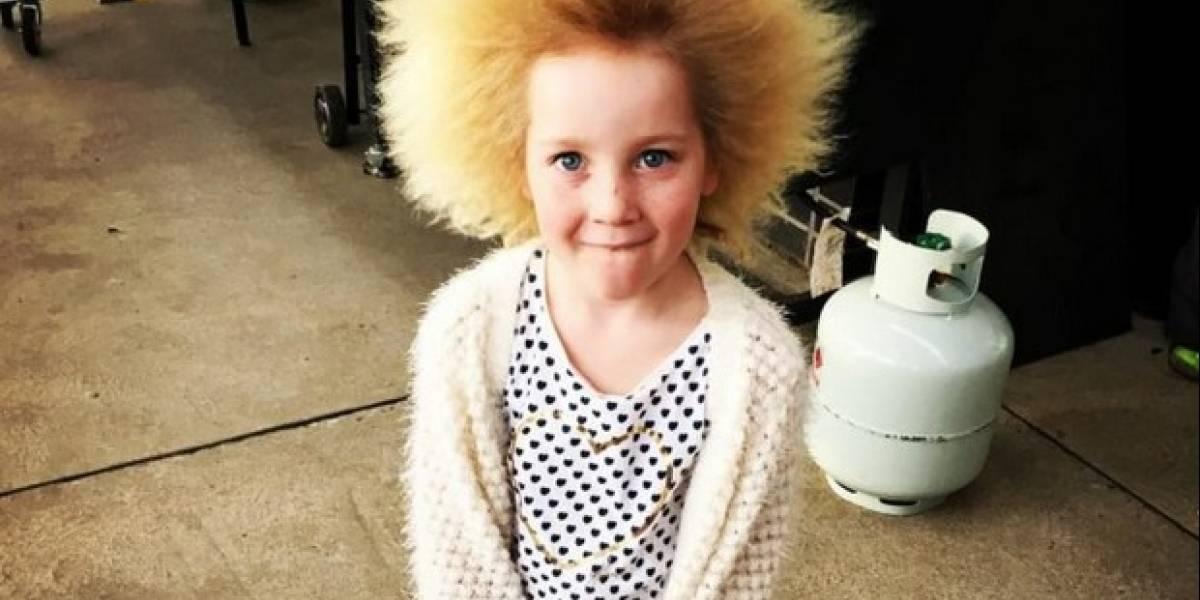 """El rarísimo """"síndrome del cabello impeinable"""" que transformó a esta niña en la reina de Instagram"""