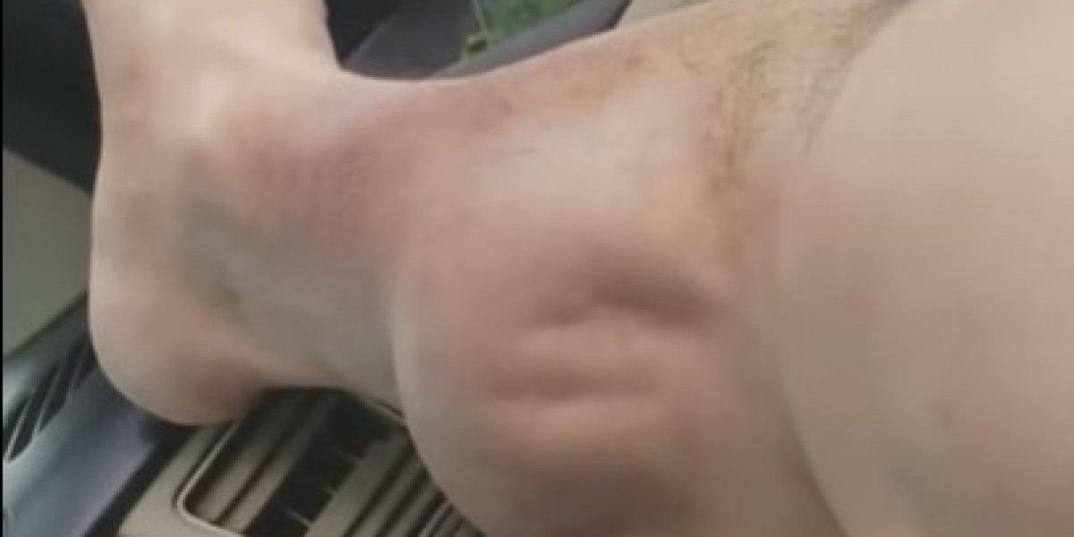 Deportista graba el calambre que le paraliza la pierna