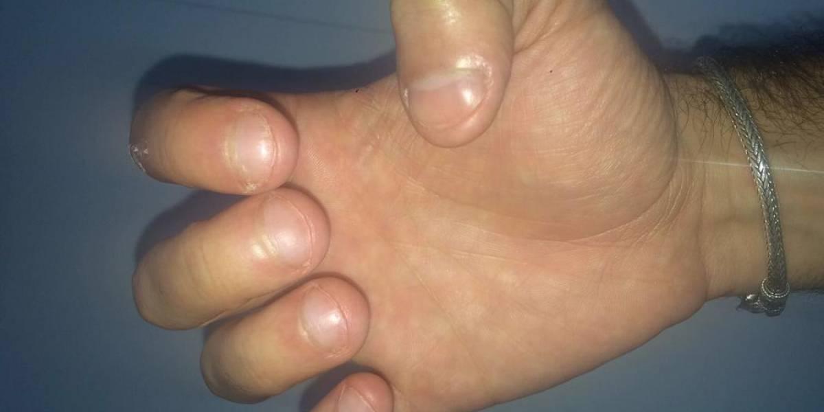 ¿Por qué nos mordemos las uñas?
