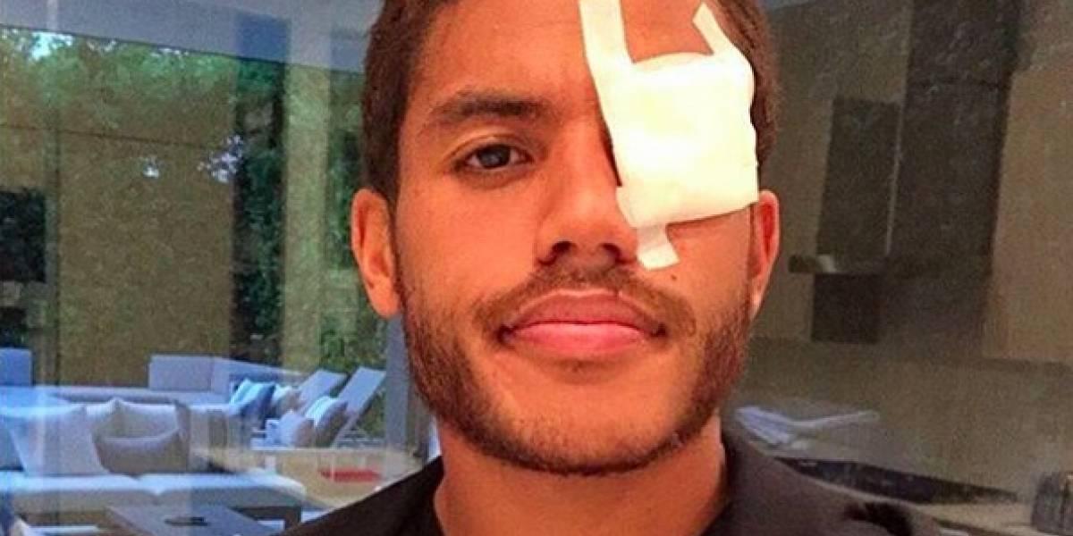 'Jona' Dos Santos pide remedios caseros para su ojo