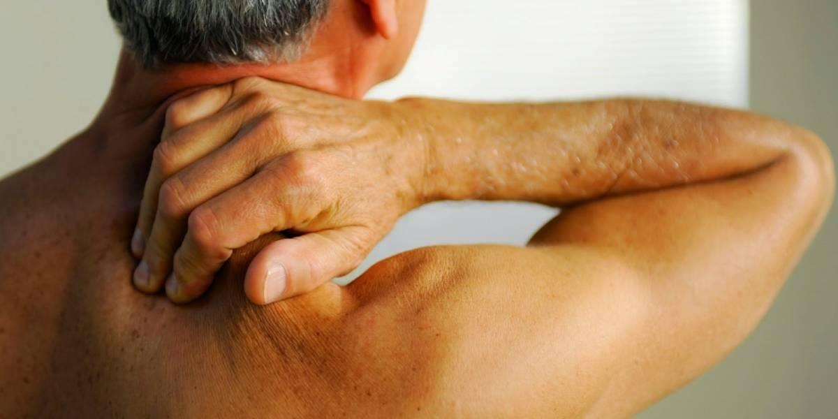 3 de cada 10 chilenos sufren de dolor crónico