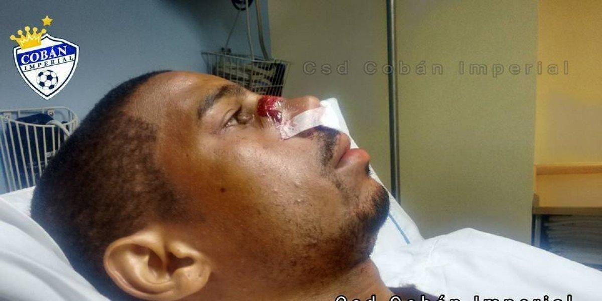 """Antigua defiende a """"el Moyo"""" Contreras y advierte a quienes lo amenazan"""