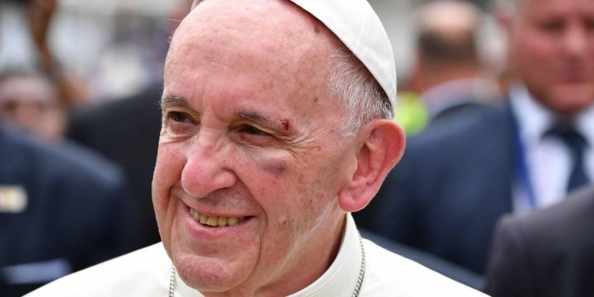 VIDEO. El papa Francisco se lastima el rostro al golpearse contra el papamóvil