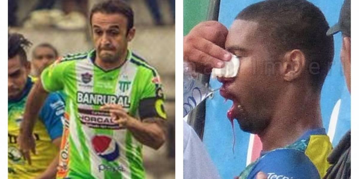 """""""El Moyo"""" se ve obligado a dar la cara tras agresión de Roger Bastos"""