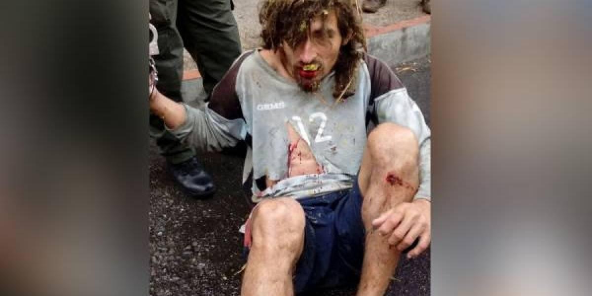 Así quedó sujeto que atacó a un niño de cinco años por robarle mil pesos