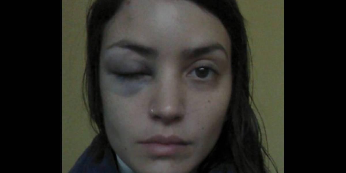 """""""Chicas, estamos solas en esto"""": la golpearon, amenazaron e intentaron violar y matar y los policías le dieron una insólita respuesta"""
