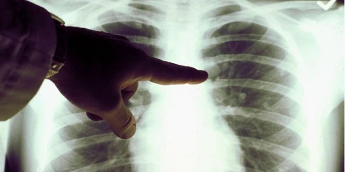 En 2030 habrá una muerte por cáncer cada dos segundos