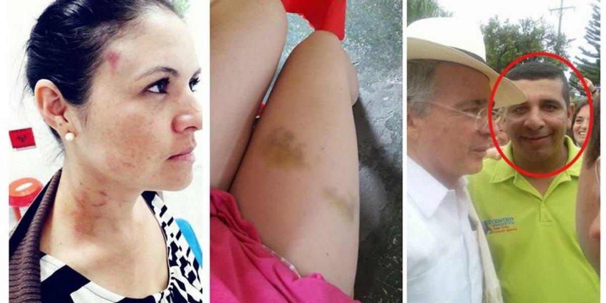Acusan a concejal del Centro Democrático por violencia intrafamiliar